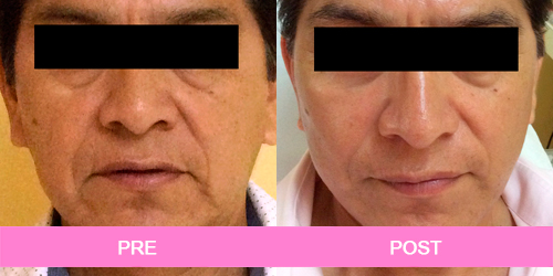 lifting facial antes y despues